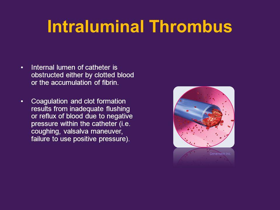 Intraluminal Thrombus