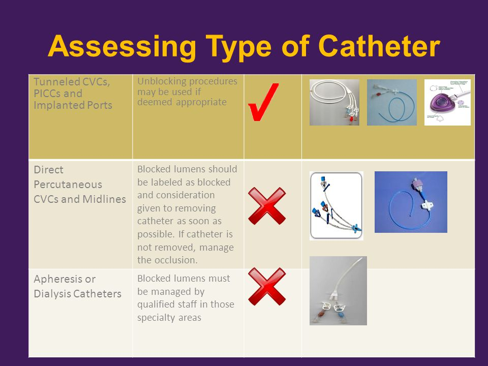 Assessing Type of Catheter