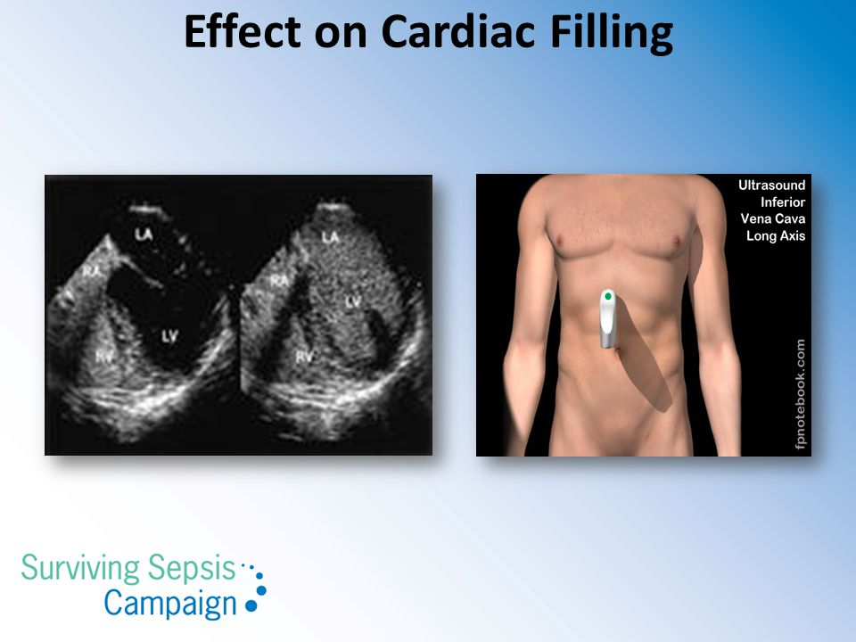 Effect on Cardiac Filling
