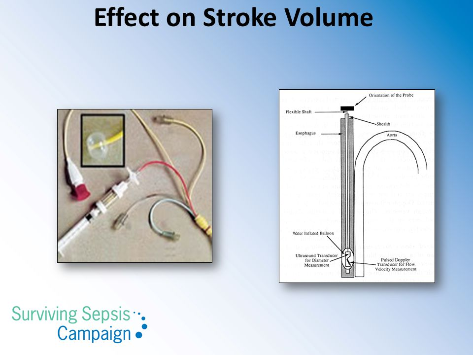 Effect on Stroke Volume