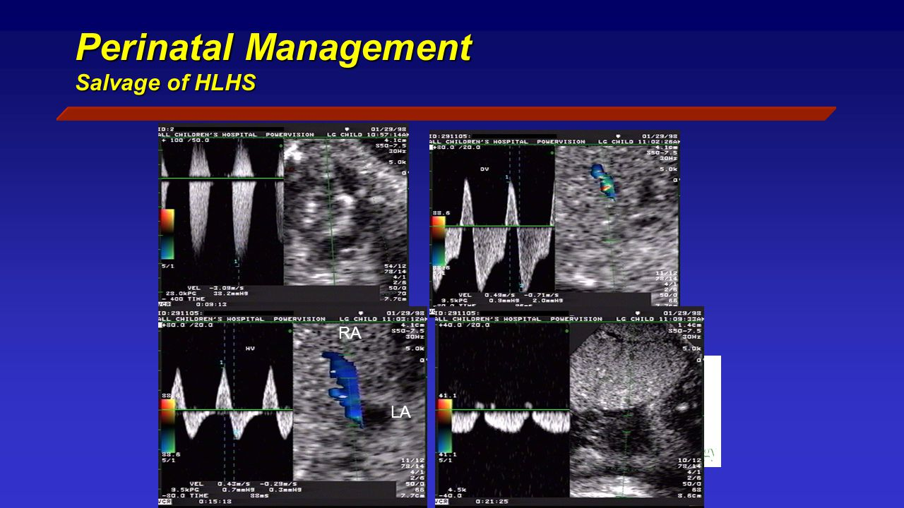 Perinatal Management Salvage of HLHS