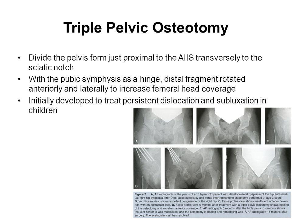 Triple Pelvic Osteotomy