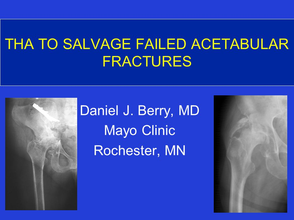 THA TO SALVAGE FAILED ACETABULAR FRACTURES