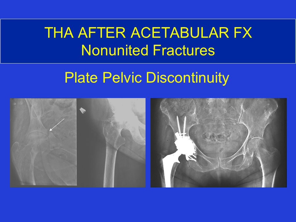 THA AFTER ACETABULAR FX Nonunited Fractures