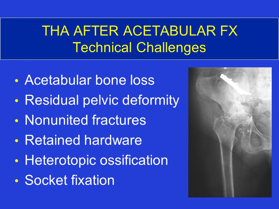 THA AFTER ACETABULAR FX Technical Challenges