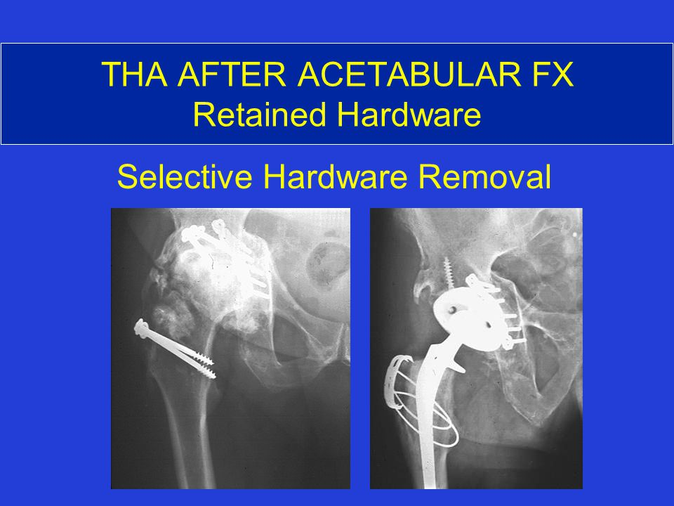 THA AFTER ACETABULAR FX Retained Hardware