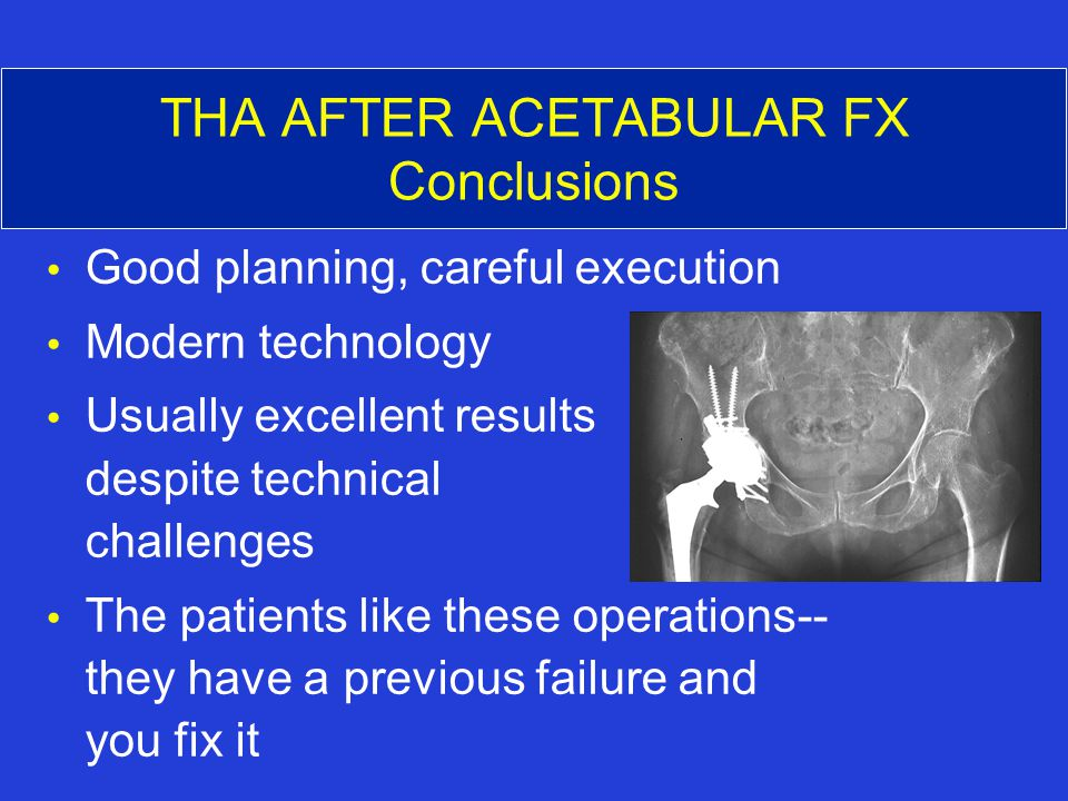 THA AFTER ACETABULAR FX Conclusions