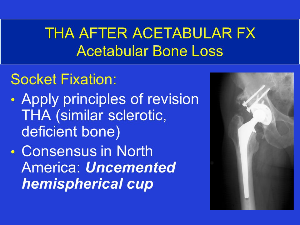 THA AFTER ACETABULAR FX Acetabular Bone Loss