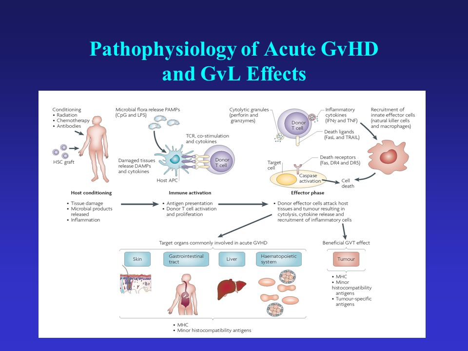 Pathophysiology of Acute GvHD and GvL Effects