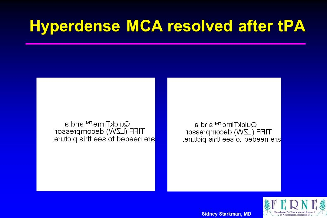 Hyperdense MCA resolved after tPA