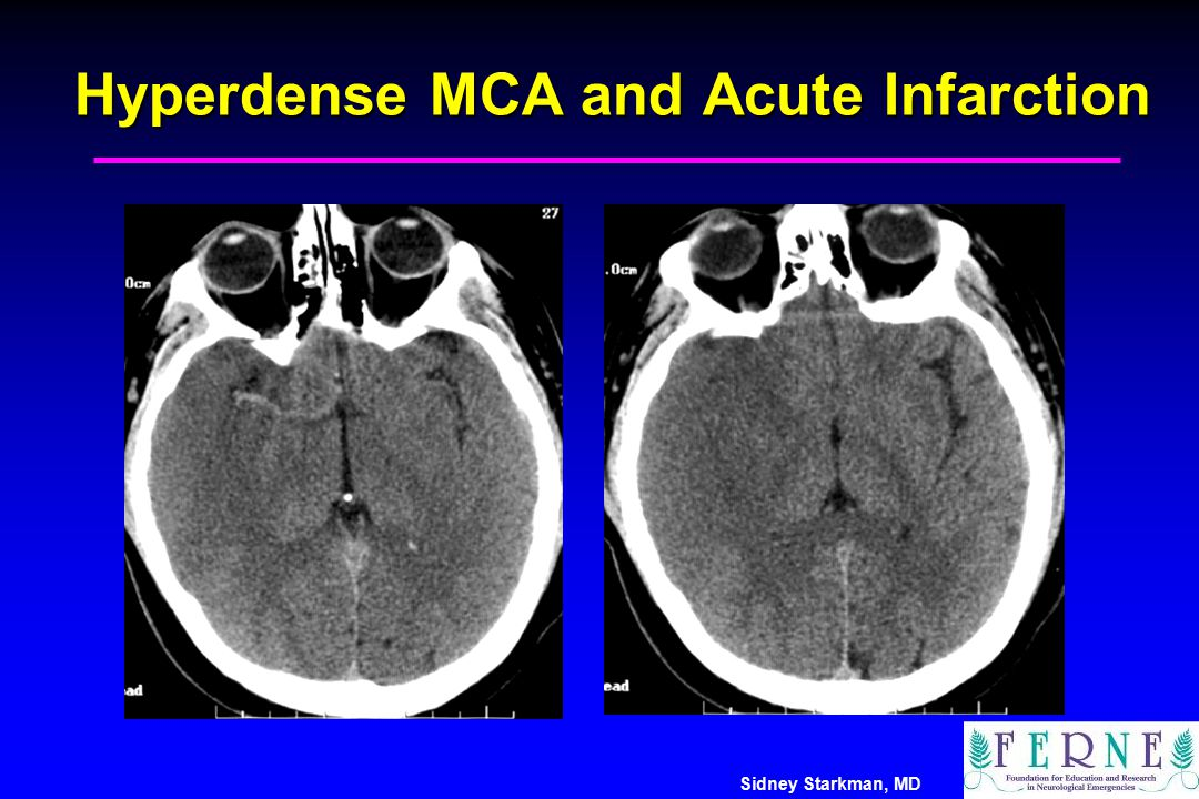 Hyperdense MCA and Acute Infarction