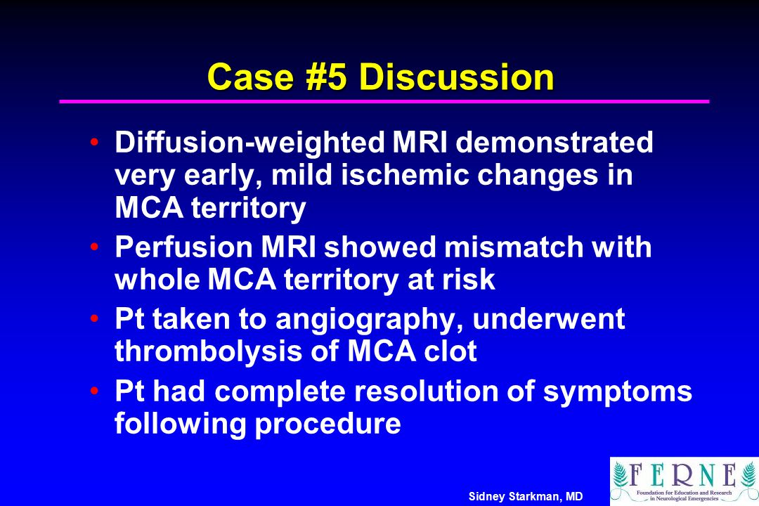 Case #5 Discussion Diffusion-weighted MRI demonstrated very early, mild ischemic changes in MCA territory.