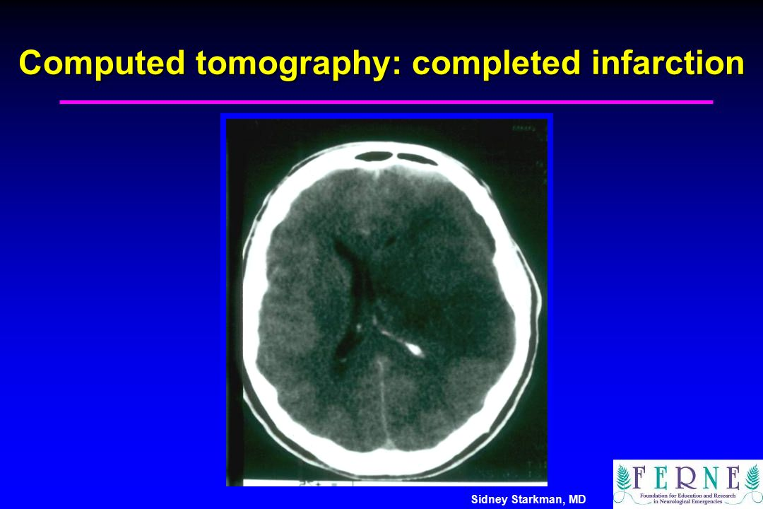 Computed tomography: completed infarction