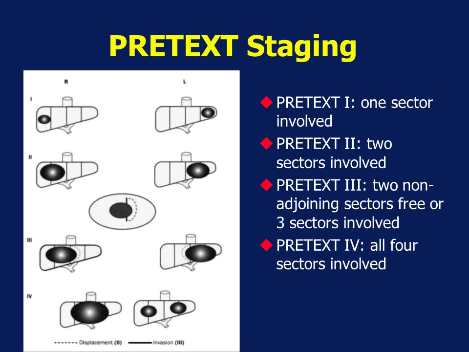 PRETEXT Staging PRETEXT I: one sector involved