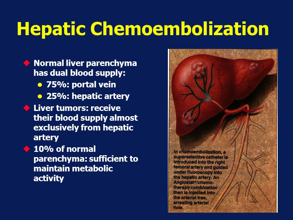 Hepatic Chemoembolization
