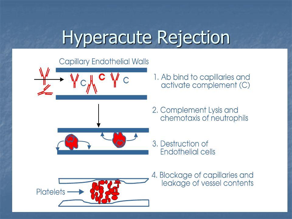 Hyperacute Rejection