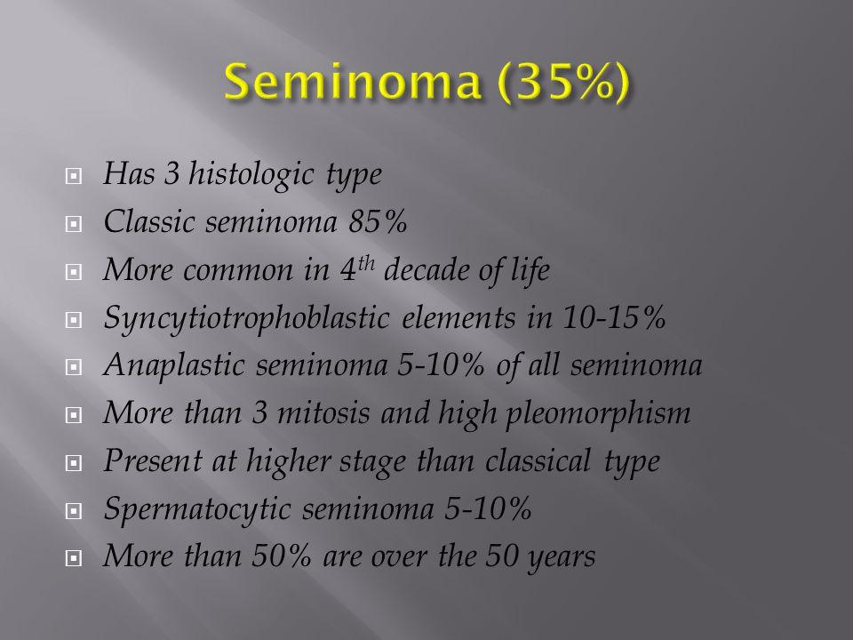 Seminoma (35%) Has 3 histologic type Classic seminoma 85%