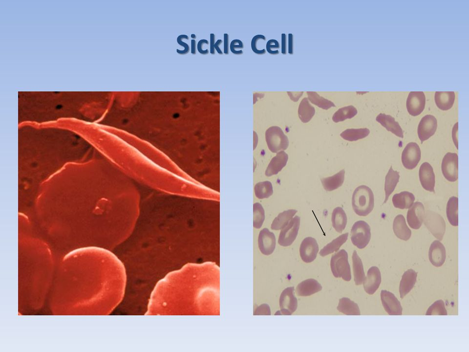 Sickle Cell