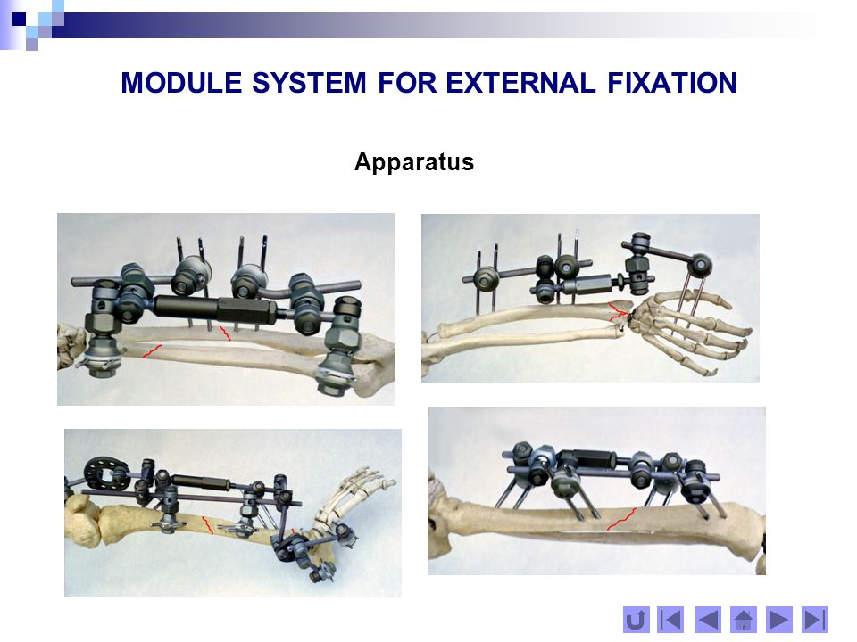 MODULE SYSTEM FOR EXTERNAL FIXATION