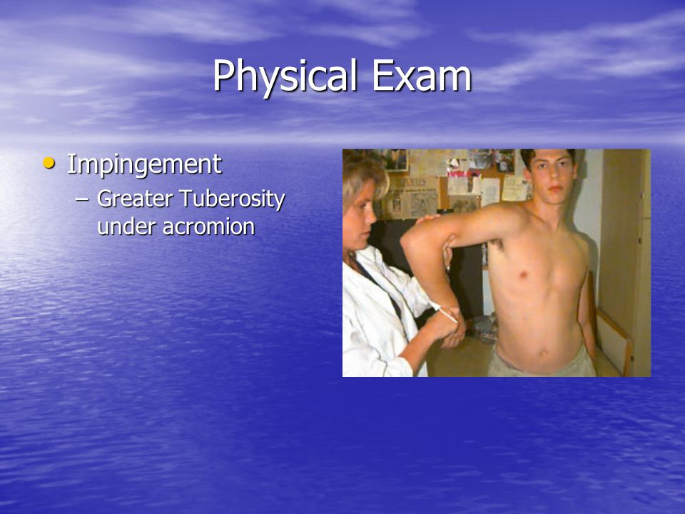 Physical Exam Impingement Greater Tuberosity under acromion