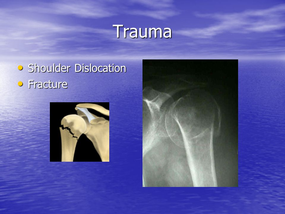 Trauma Shoulder Dislocation Fracture