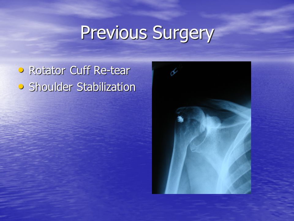 Previous Surgery Rotator Cuff Re-tear Shoulder Stabilization
