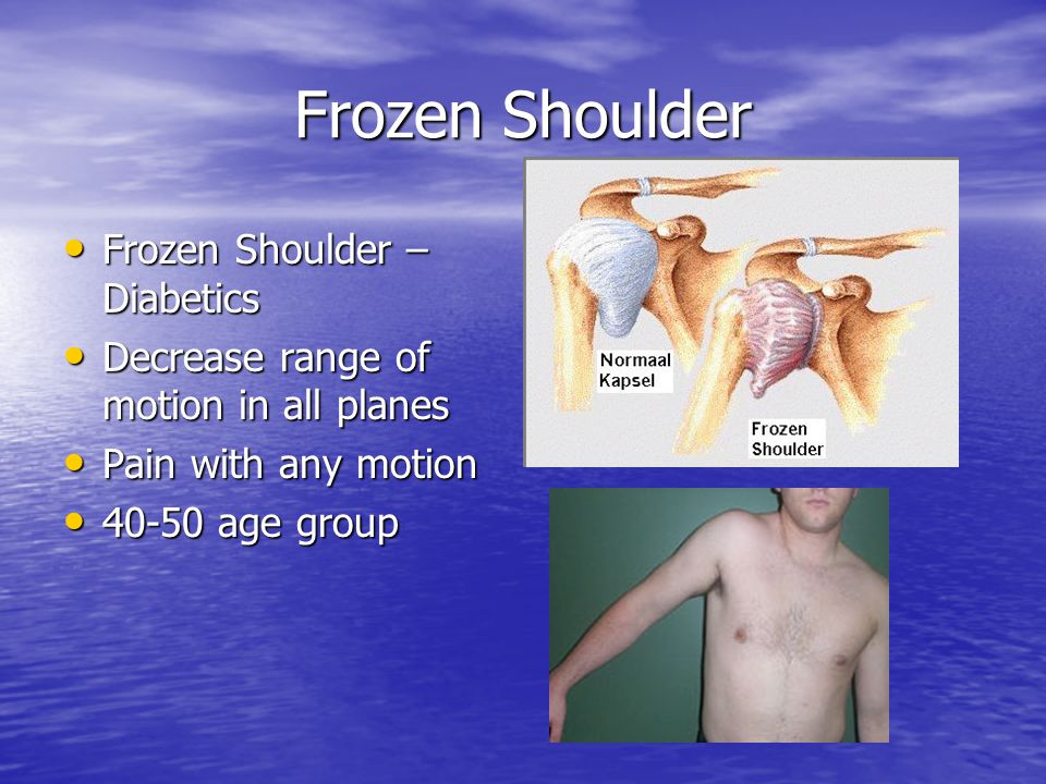 Frozen Shoulder Frozen Shoulder – Diabetics