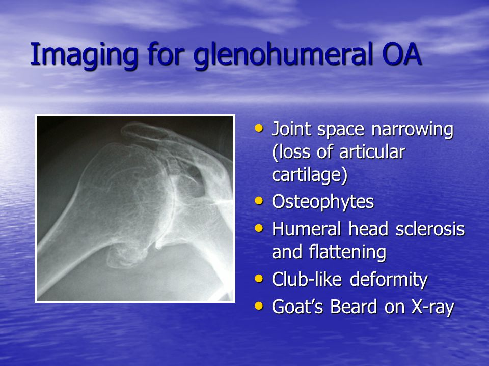 Imaging for glenohumeral OA