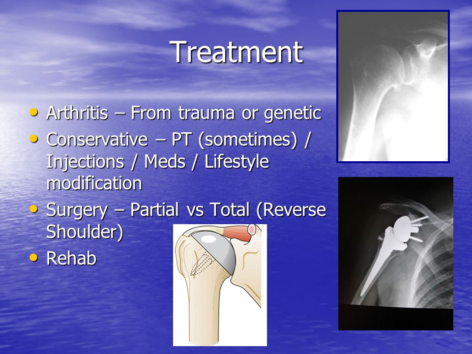 Treatment Arthritis – From trauma or genetic