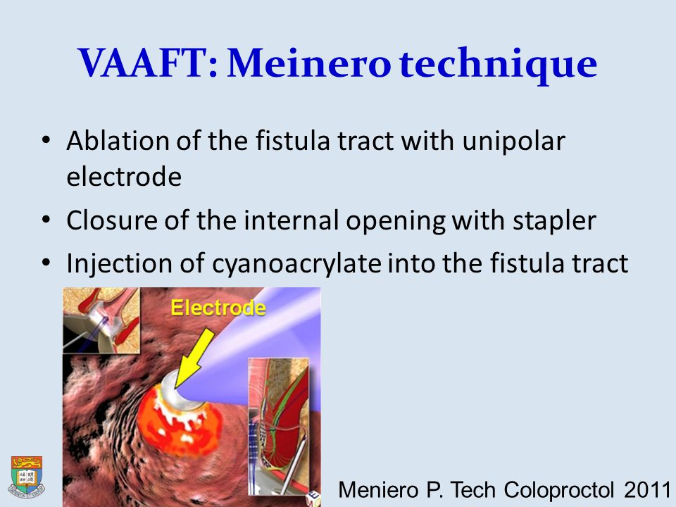 VAAFT: Meinero technique