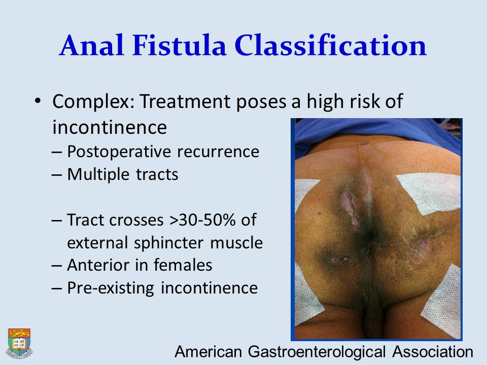 Anal Fistula Classification