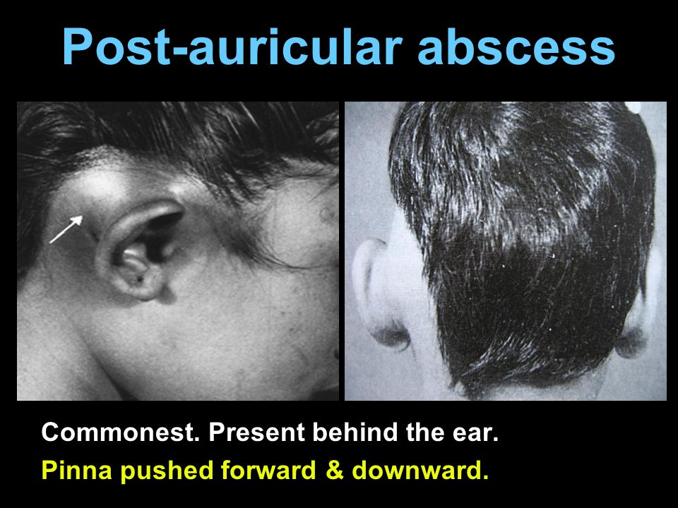 Post-auricular abscess