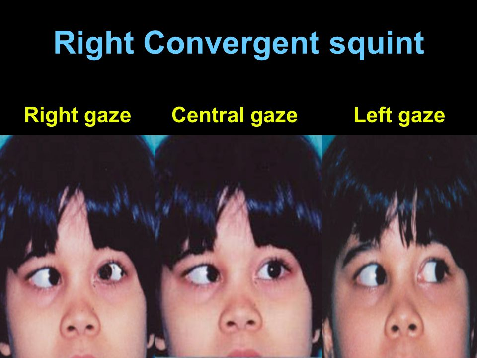 Right Convergent squint