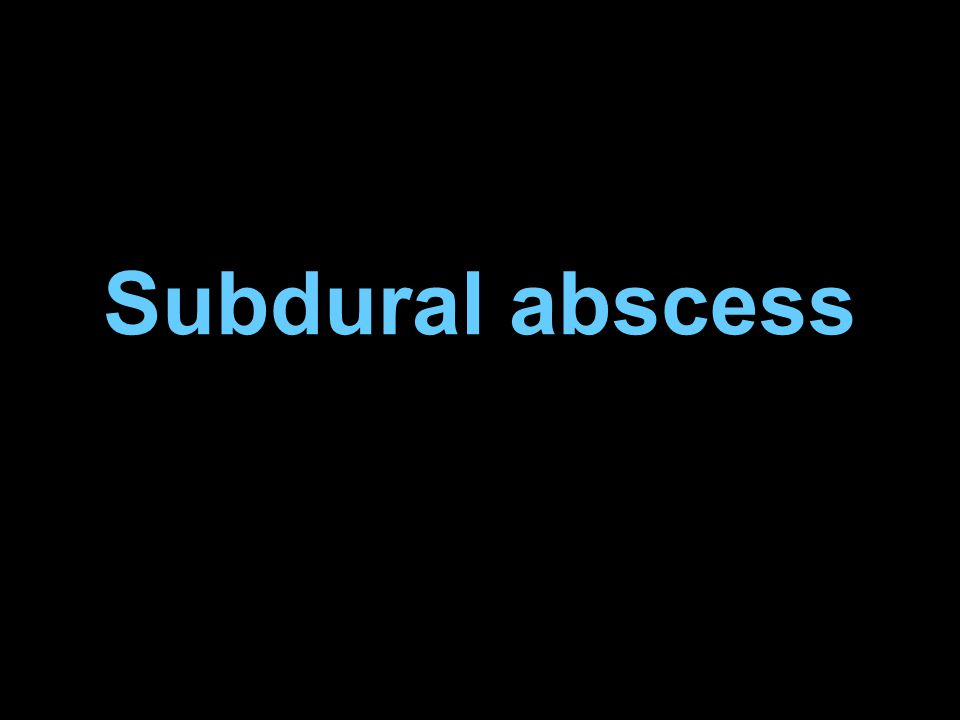 Subdural abscess