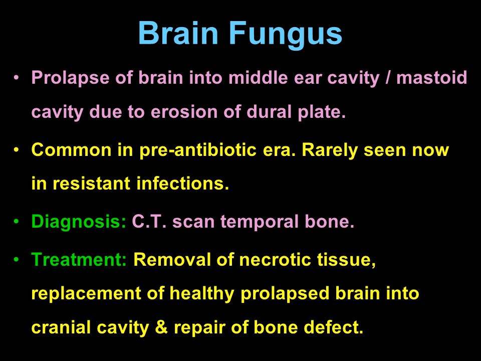 Brain Fungus Prolapse of brain into middle ear cavity / mastoid cavity due to erosion of dural plate.