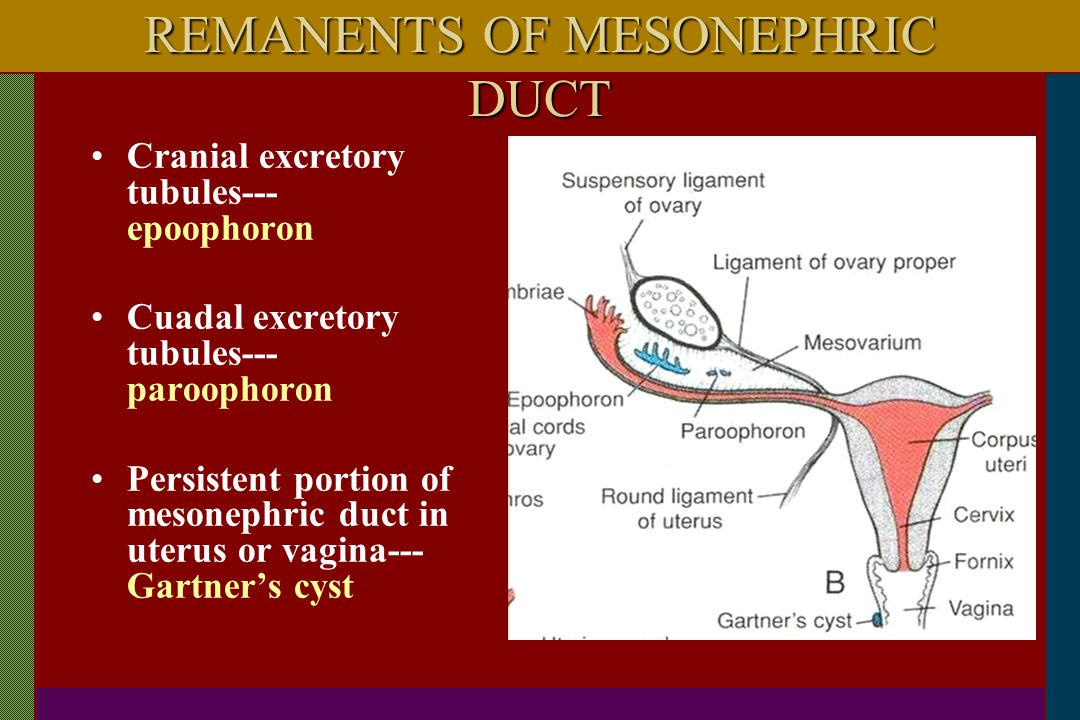 REMANENTS OF MESONEPHRIC DUCT