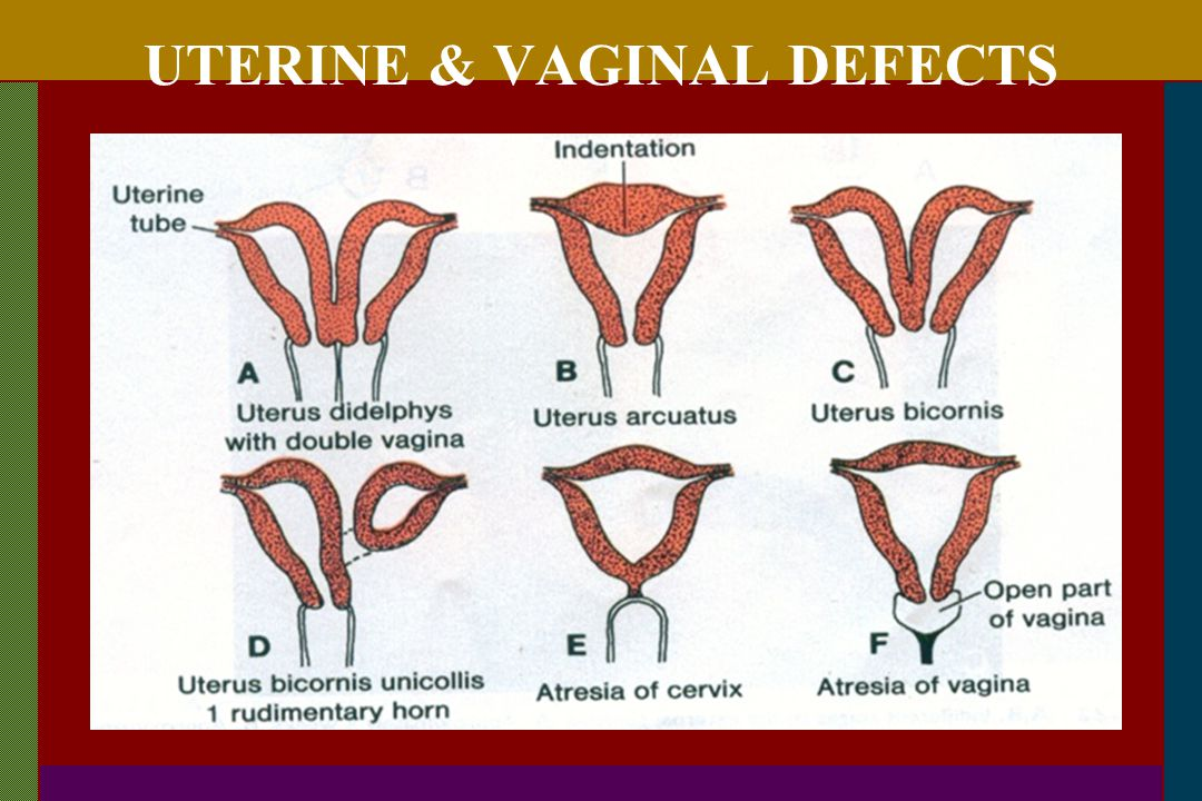 UTERINE & VAGINAL DEFECTS