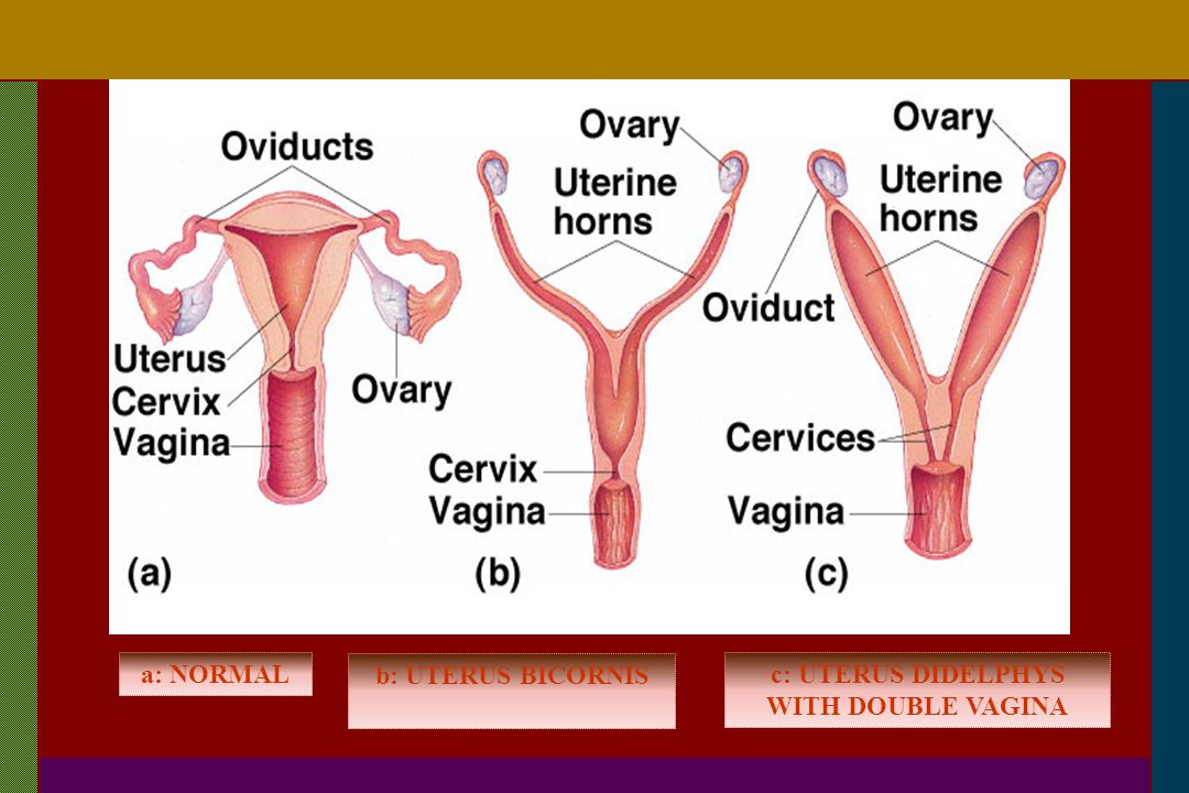 c: UTERUS DIDELPHYS WITH DOUBLE VAGINA