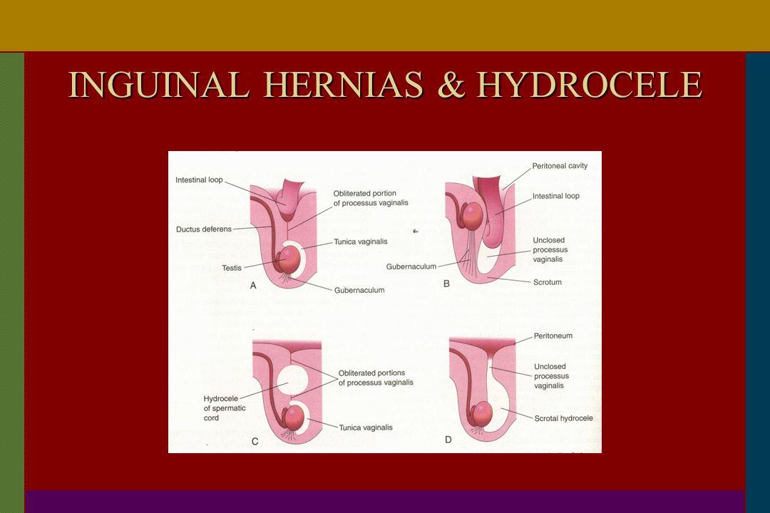 INGUINAL HERNIAS & HYDROCELE