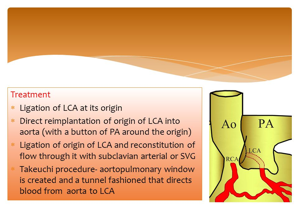 Treatment Ligation of LCA at its origin. Direct reimplantation of origin of LCA into aorta (with a button of PA around the origin)