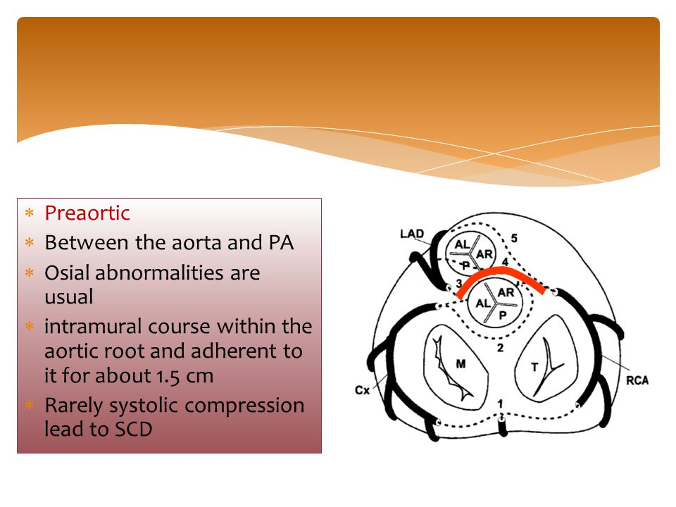 Preaortic Between the aorta and PA. Osial abnormalities are usual. intramural course within the aortic root and adherent to it for about 1.5 cm.