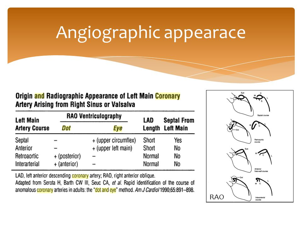 Angiographic appearace