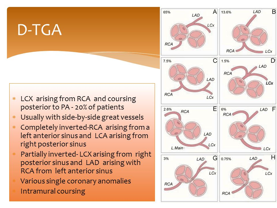 D-TGA LCX arising from RCA and coursing posterior to PA - 20% of patients. Usually with side-by-side great vessels.