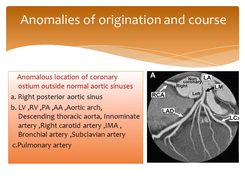 Anomalies of origination and course