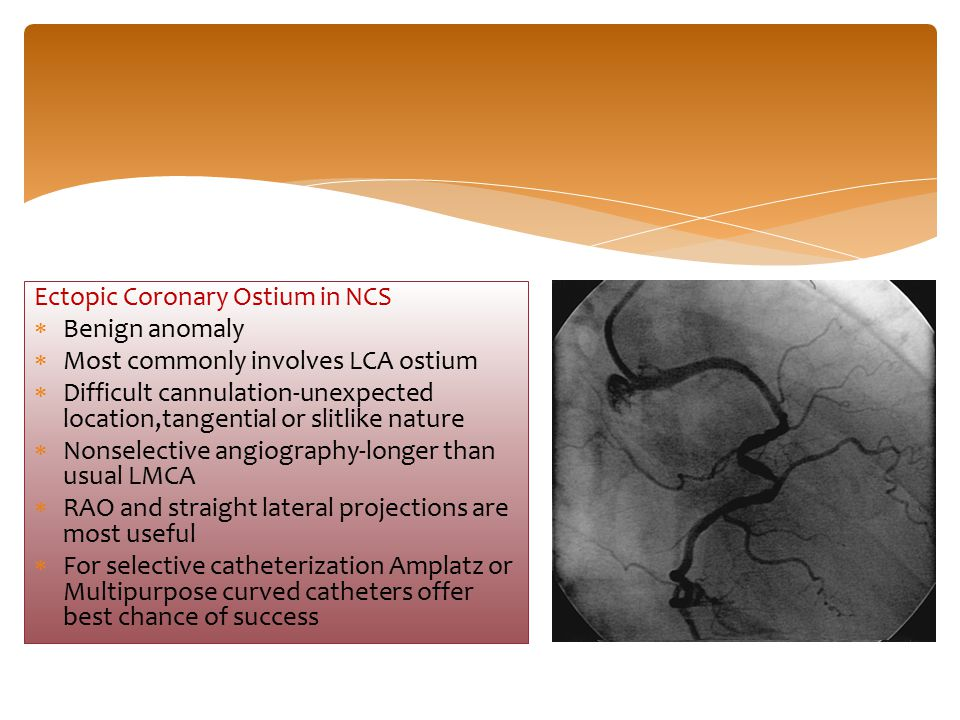 Ectopic Coronary Ostium in NCS