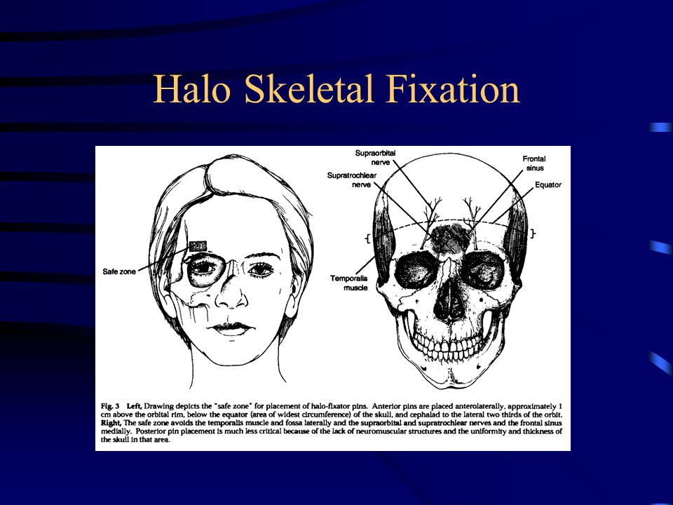 Halo Skeletal Fixation