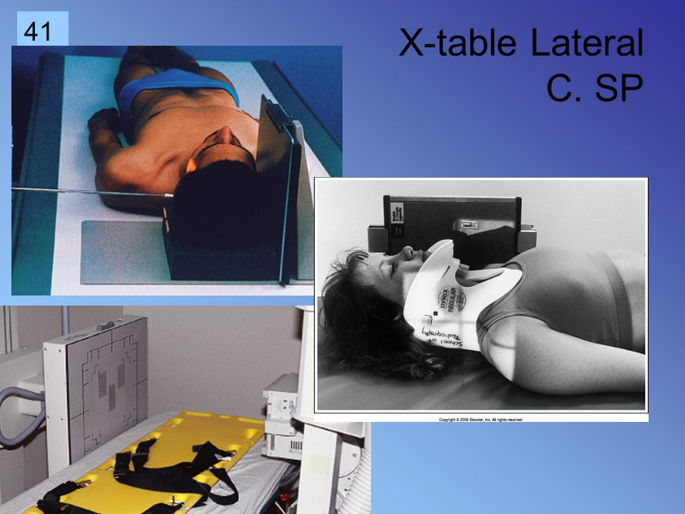X-table Lateral C. SP