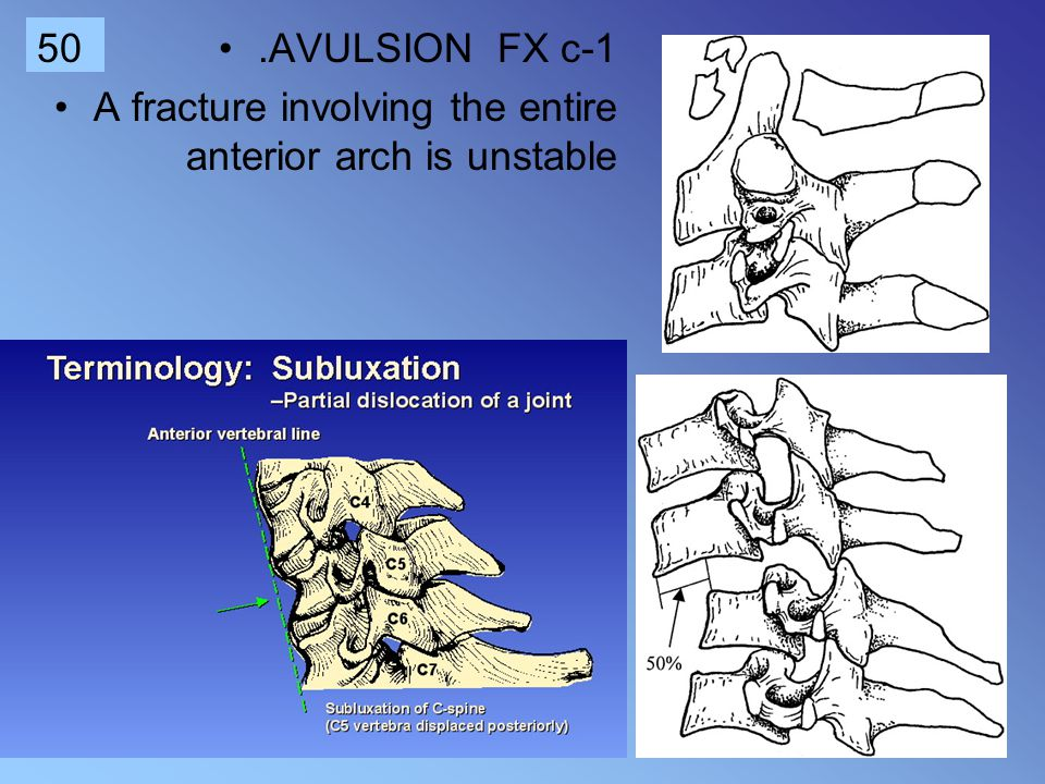 .AVULSION FX c-1 A fracture involving the entire anterior arch is unstable