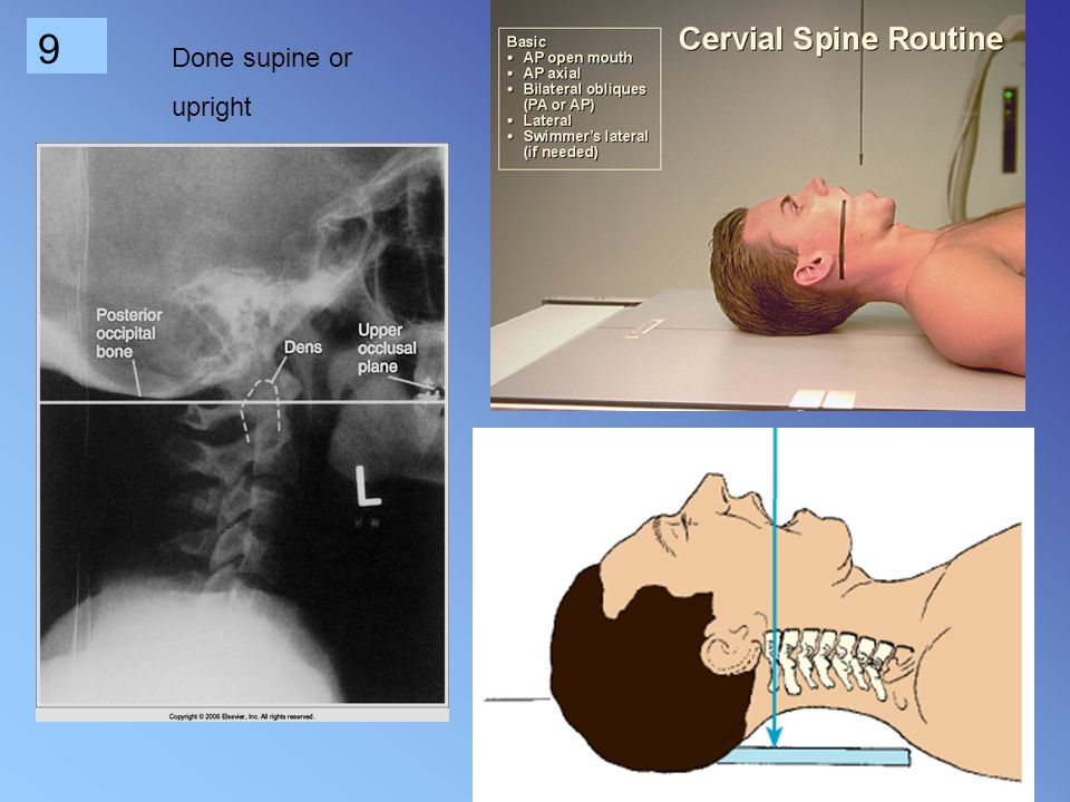 Done supine or upright