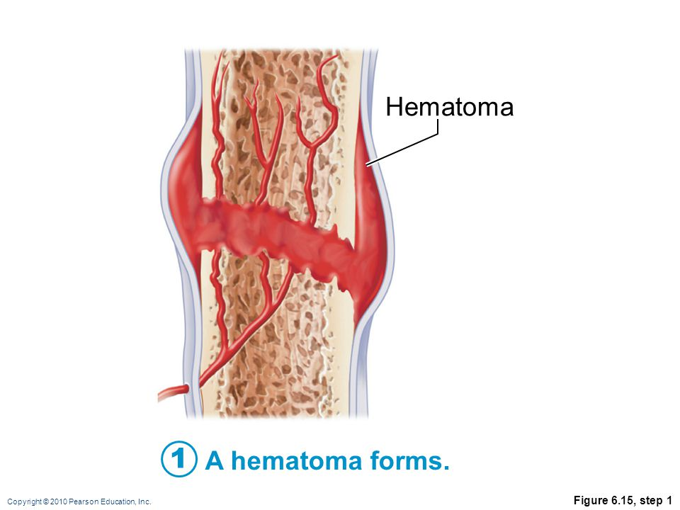 Hematoma 1 A hematoma forms. Figure 6.15, step 1